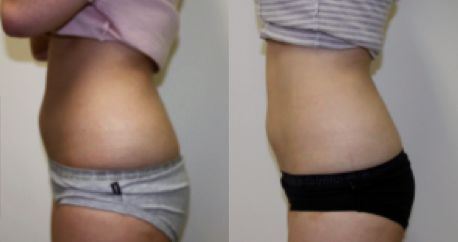 Exilis Abdomen Before and After