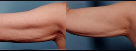 Loose Arm Skin Tightened - Before and After