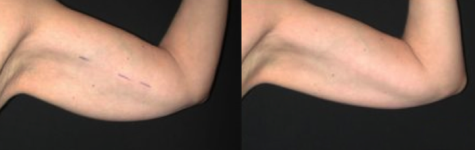 Before and After - Bulky Arms Reduced