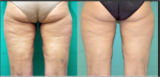 Before and After Thigh skin tightened
