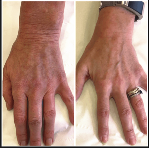 Exilis Hands Before and After