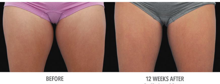 before and after thigh size reduced