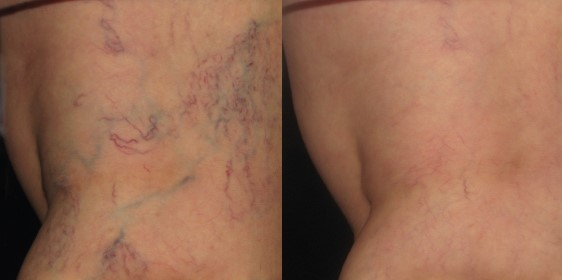 before and after back of thigh