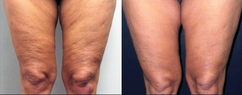 Before and After Thigh Cellulite Reduced