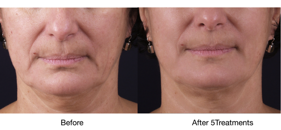 Exilis before and after - tighten skin around mouth