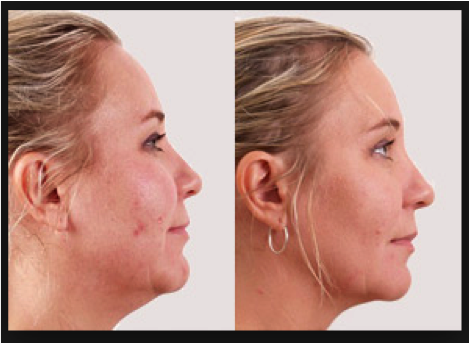 Exilis before and after reduced fat under the chin