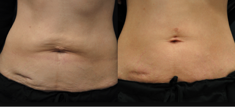Exilis before and after - tightened loose skin