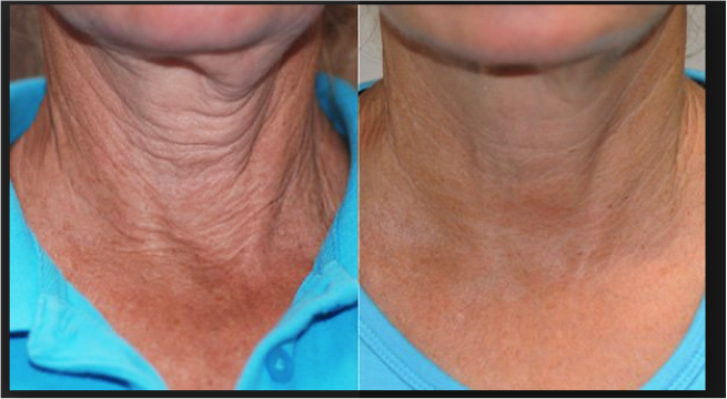 Exilis Neck Before and After - Skin appears tighter after treatment