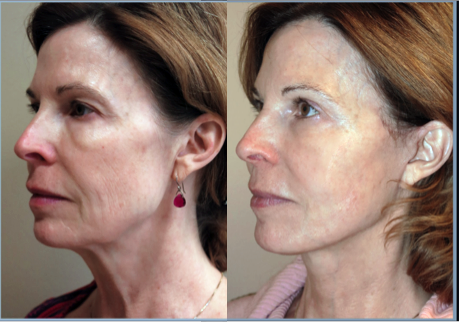 Exilis Before and After - reduced laugh lines
