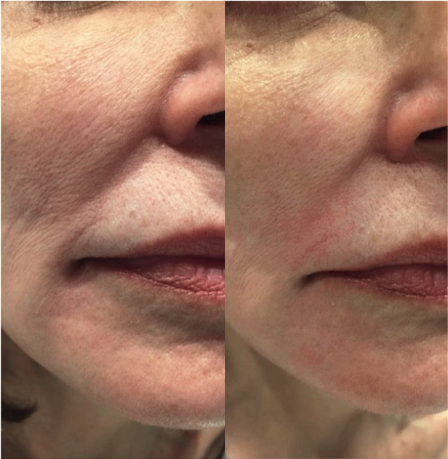 Exilis Before and After - Lines around the mouth reduced