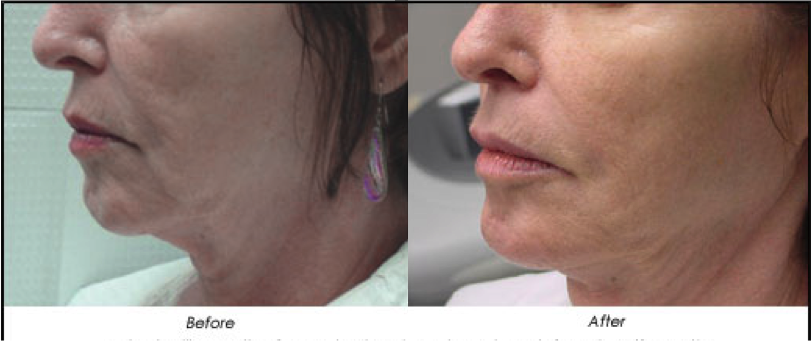 Exilis Before and After - Reduced frown lines