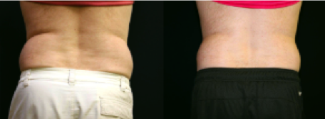 Before and After Exilis - Reduction of love handles