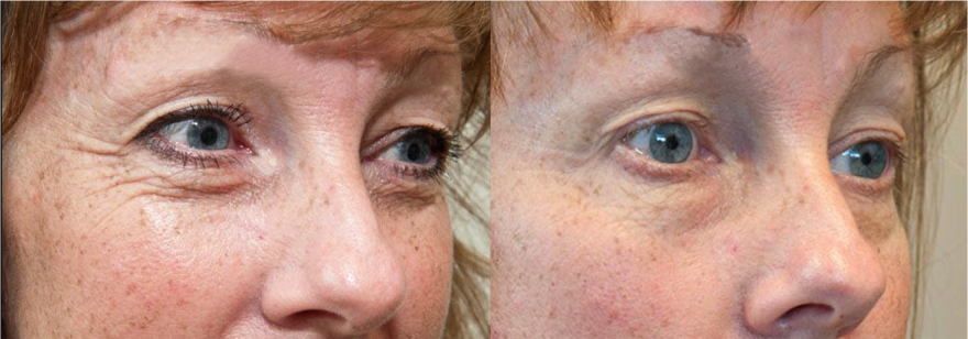 Before and After Exilis Eye Area