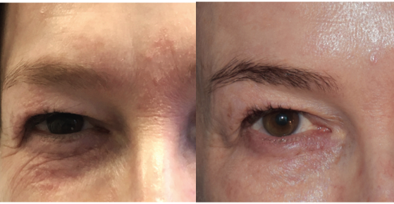 Exilis before and after - reduced crepiness around eyes