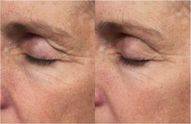 Exilis Before and After Eye Area