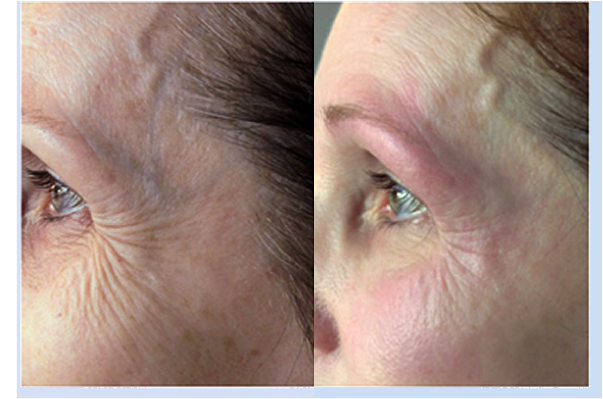Exilis Before and After - Reduces crow's feet