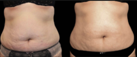 Exilis before and after - reduced fat in abdomen