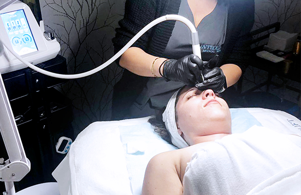 Patient Receiving RF Aqua Facial Lift