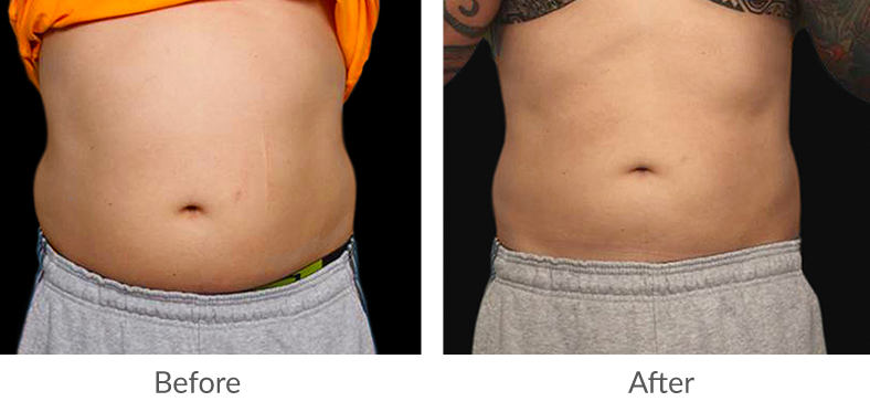 BTL Before and After man's stomach