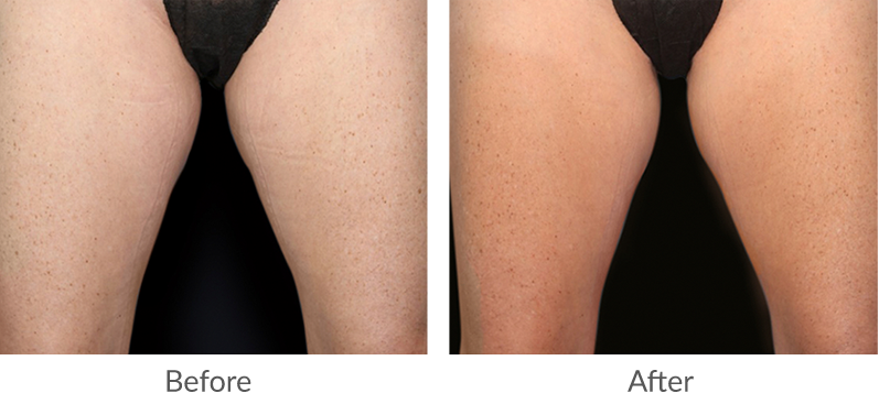 BTL Before and After legs