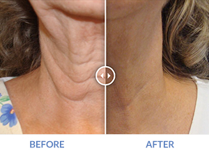 Exilis Neck Before and After - Reduced lines and sagging