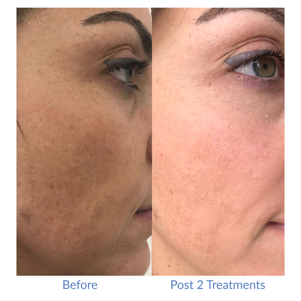 Before and After 1 (Post 2 Treatments)