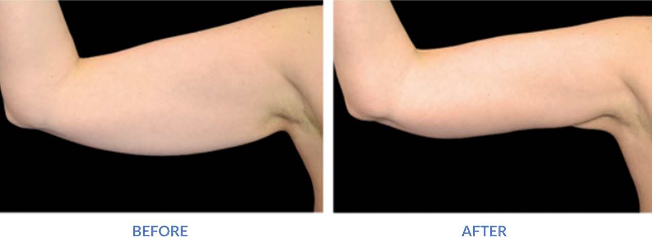 Exilis Arms Before and After loose skin tightened