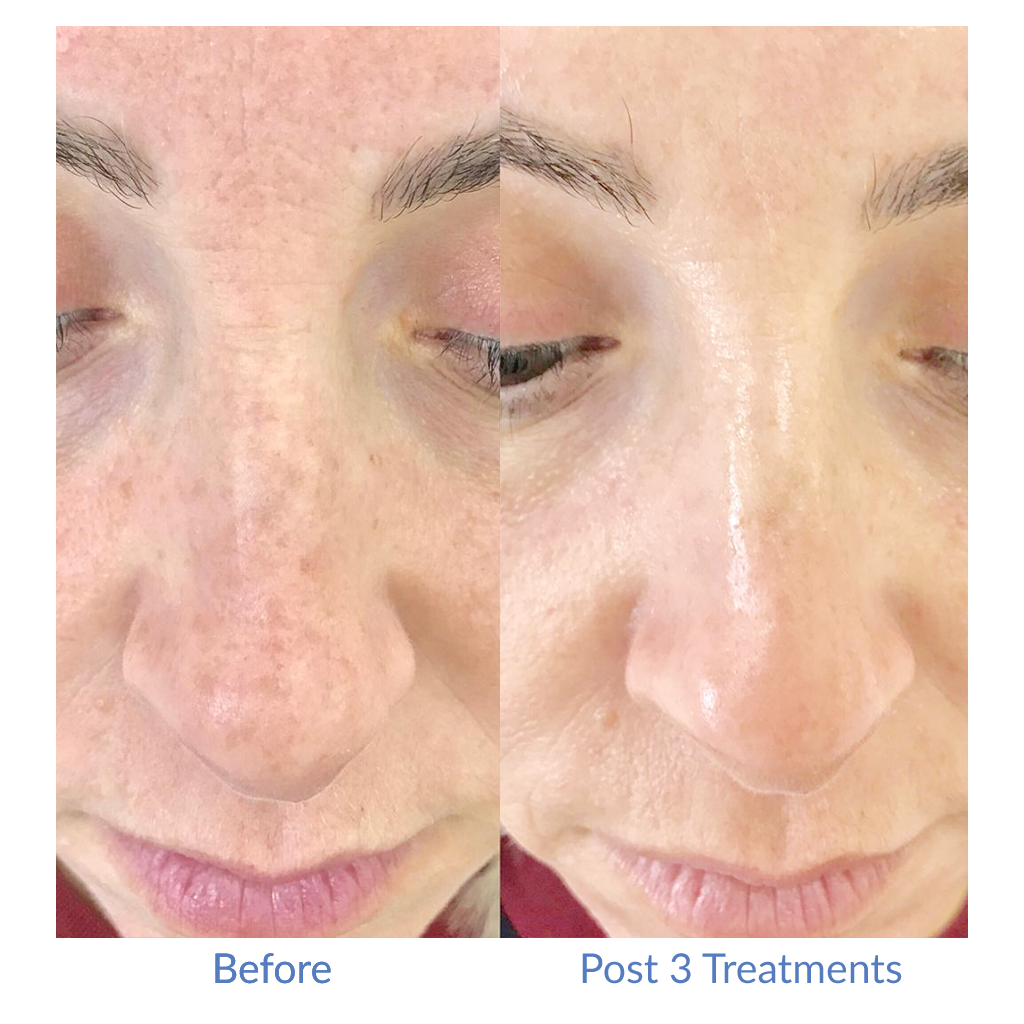 Before and After (Post 3 Treatments)