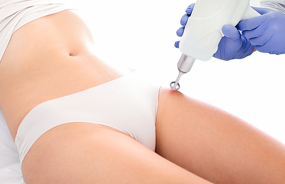 laser treatment on woman's thigh