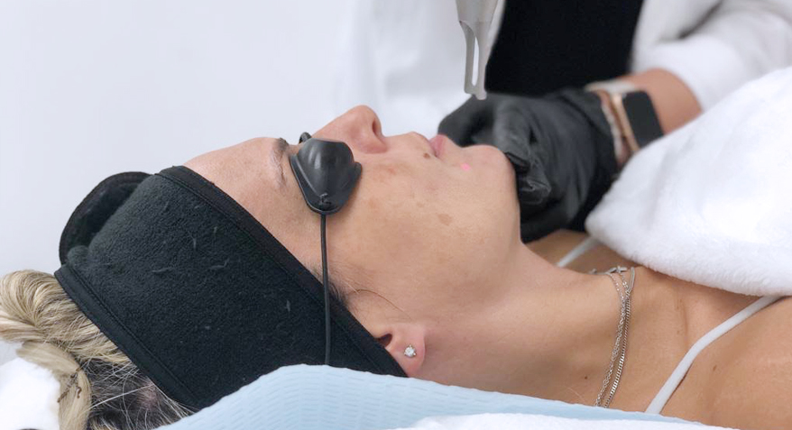 Patient Receiving Carbon Laser Peel