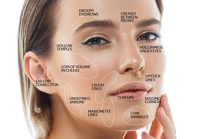 Derma Filler face anatomy