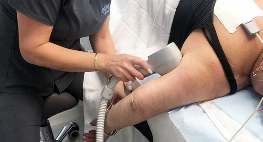 Exilis treatment on Upper Arms