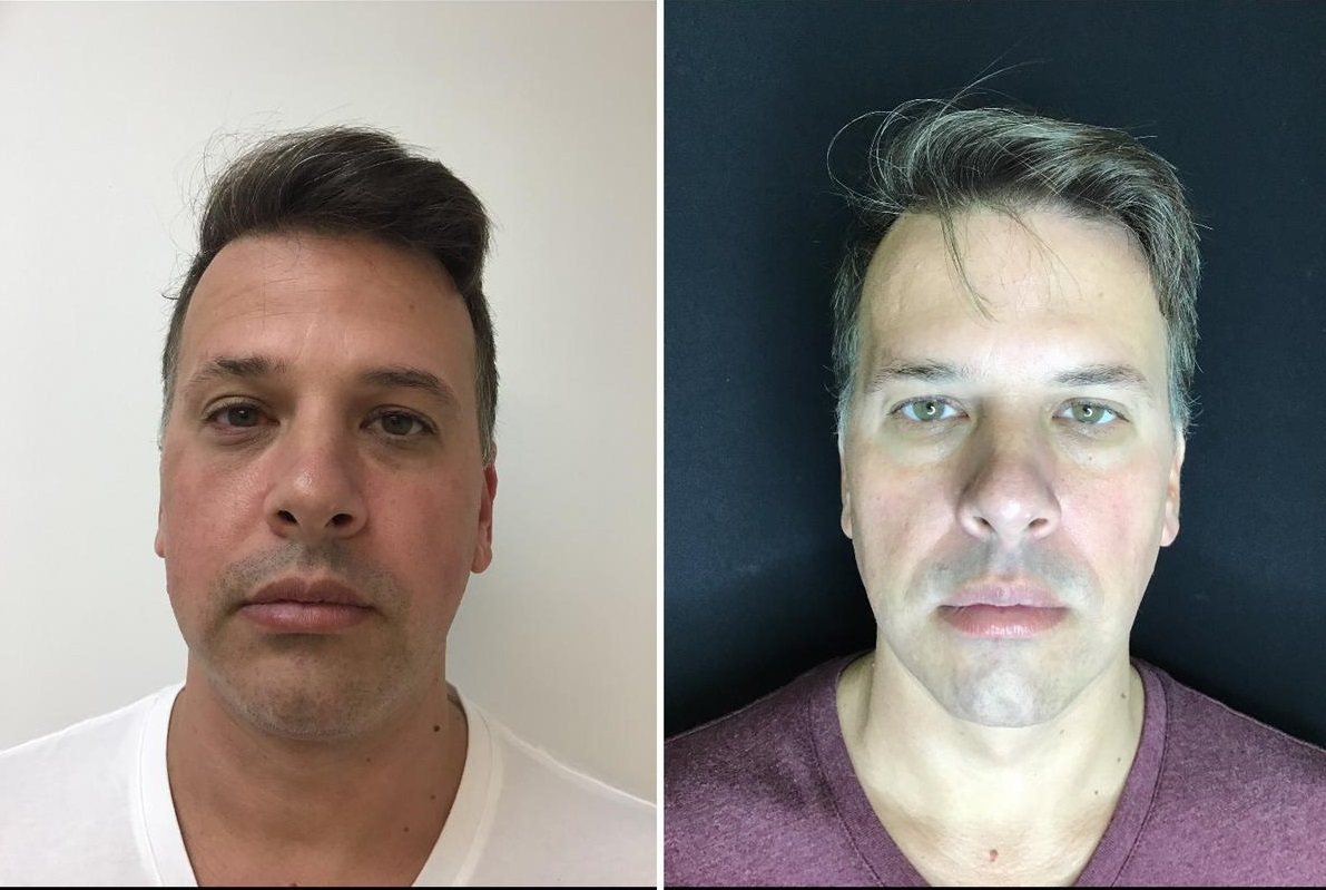 Male patient Exilis on Face, Neck before and after