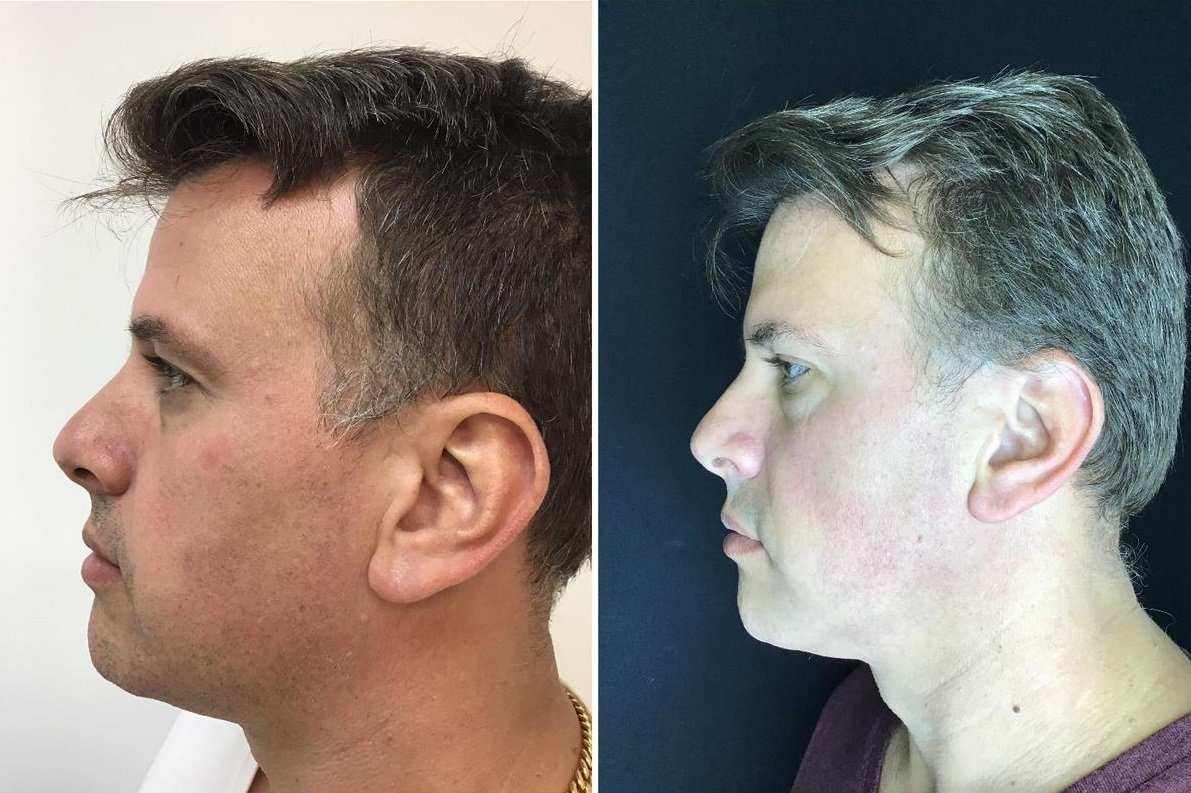Exilis patient profile view before and after lower face