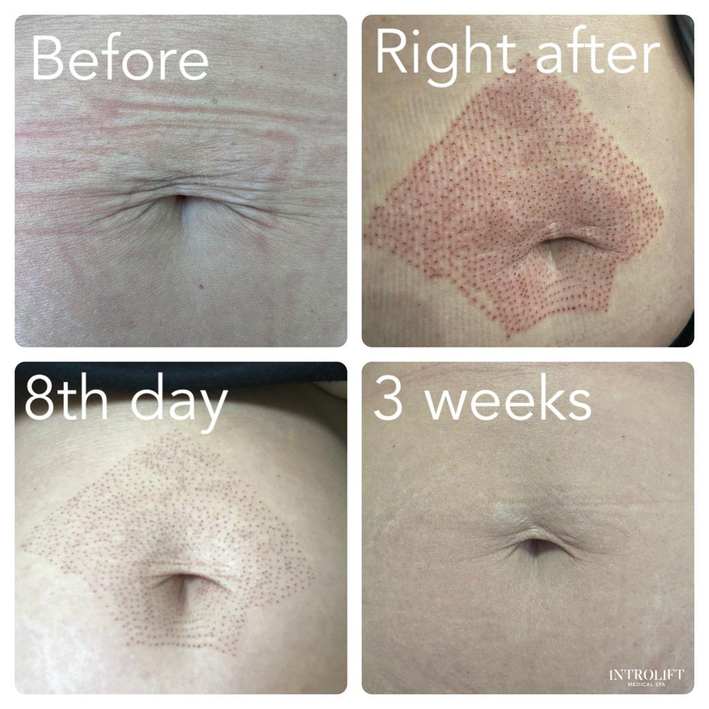 Fibroblast Plasma Skin Tightening before and after