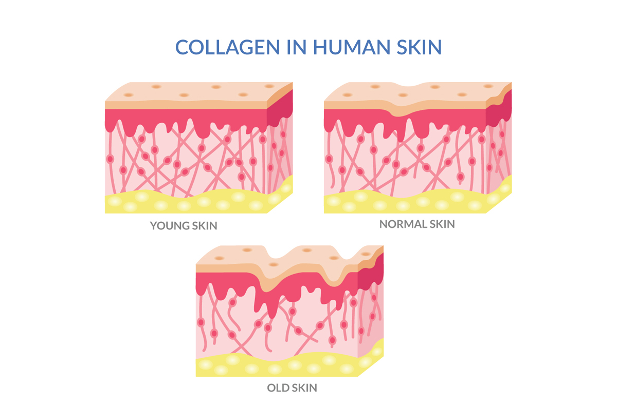 Animated Representation of skin in young normal and old stages. Collagen depletes with age.