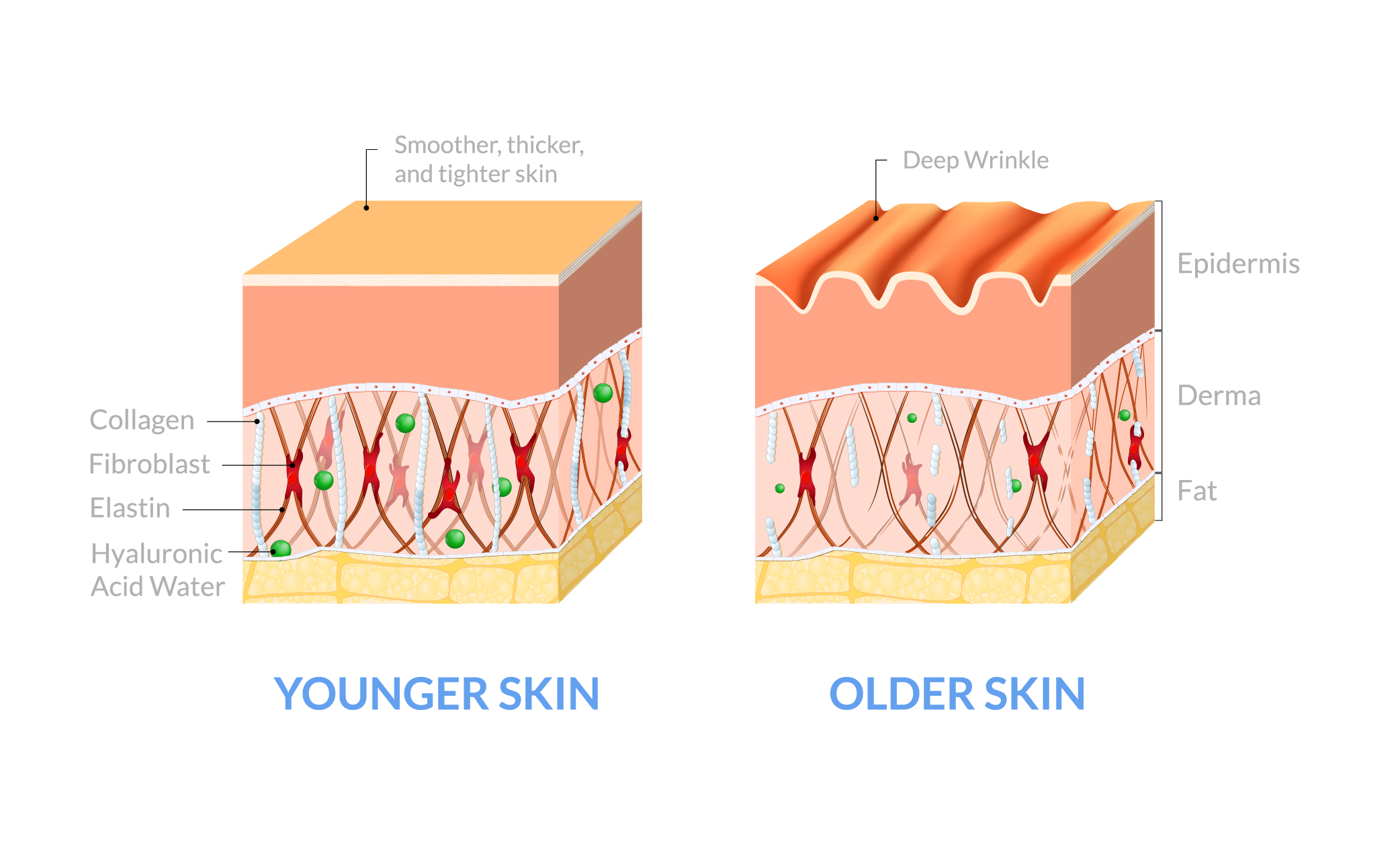 diagram comparing older and younger skin - younger skin has more collagen and is smoother