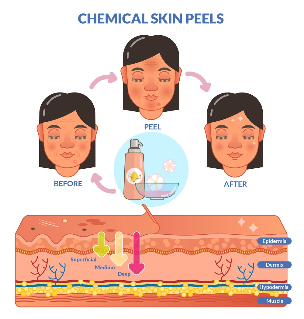 Chemical Peel reveals fresh layer of skin