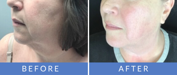 Before and after image showing Exilis treatment results