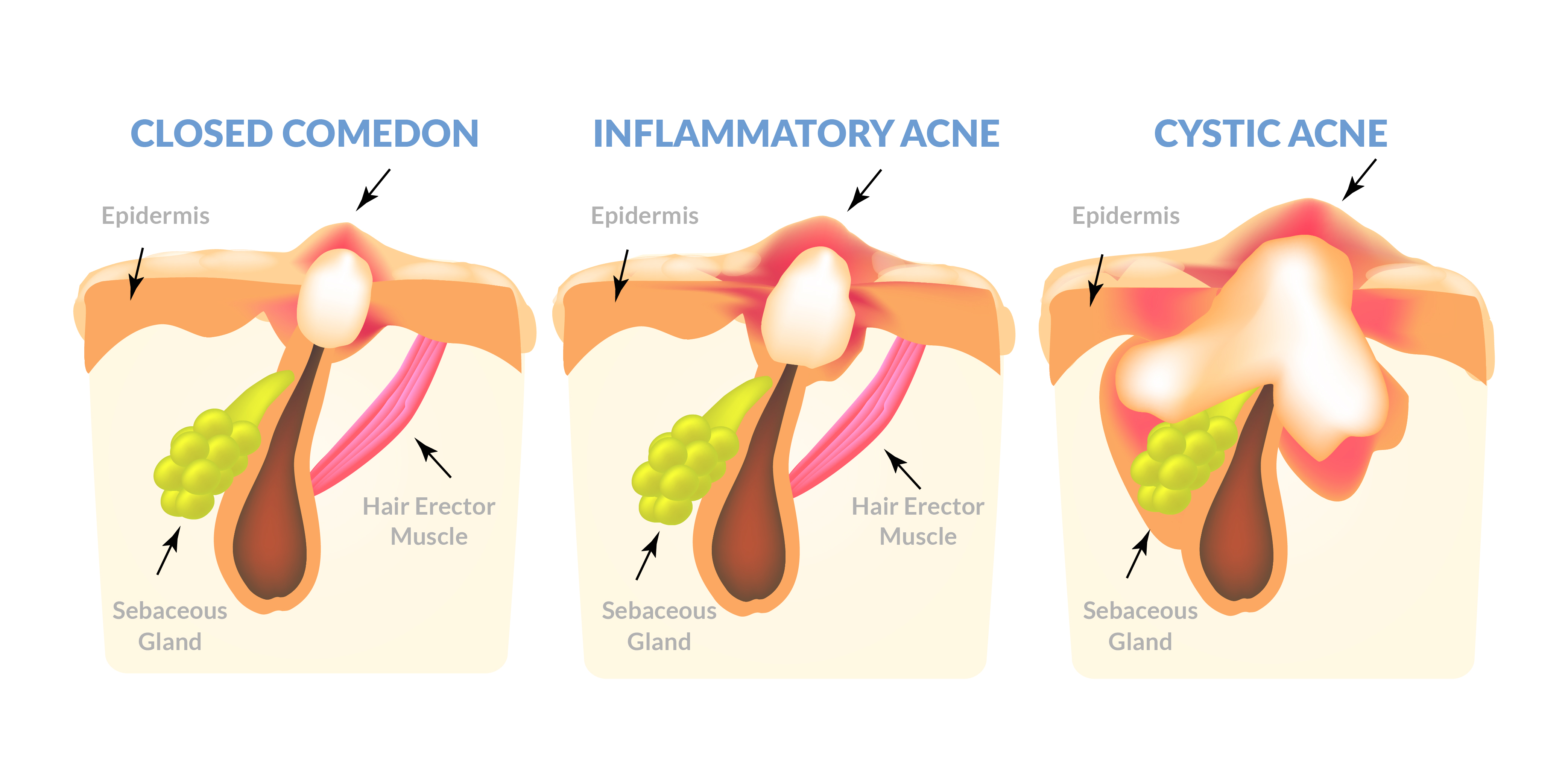 illustrations of 3 kinds of acne: closed comedon, inflammatory acne and cystic acne