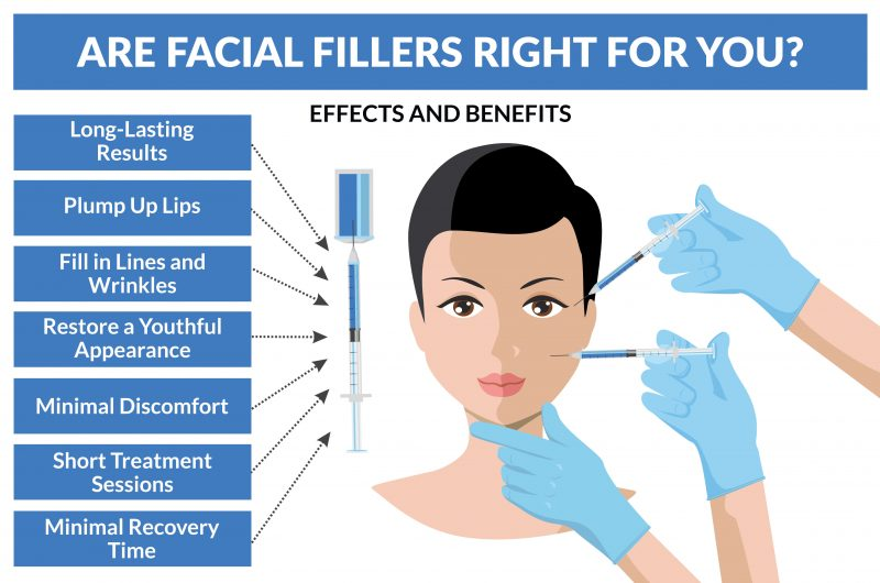 Facial filler infographic