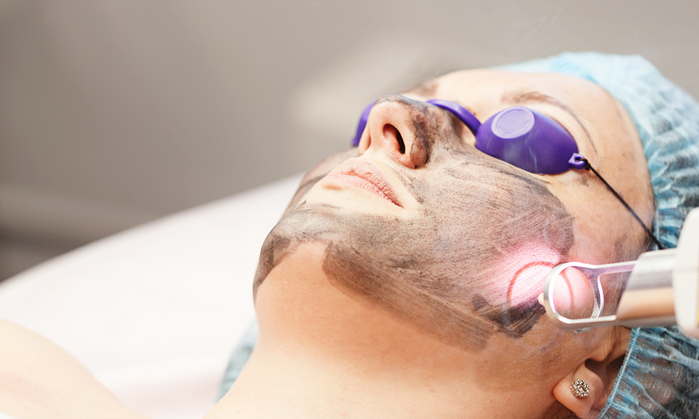 Patient receiving the carbon laser peel