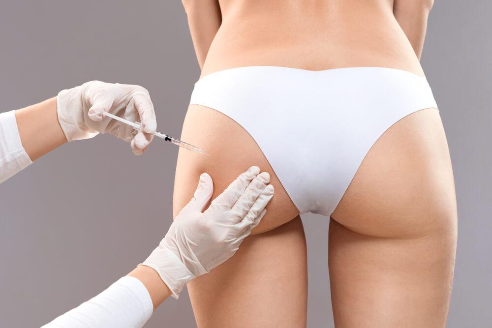 Butt filler injection
