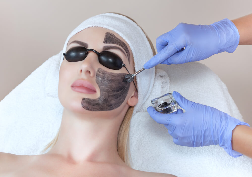 Carbon peel laser treatment on face