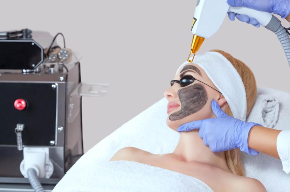 Woman having carbon peel laser treatment