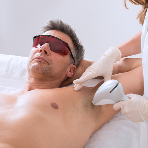 laser hair removal on a man