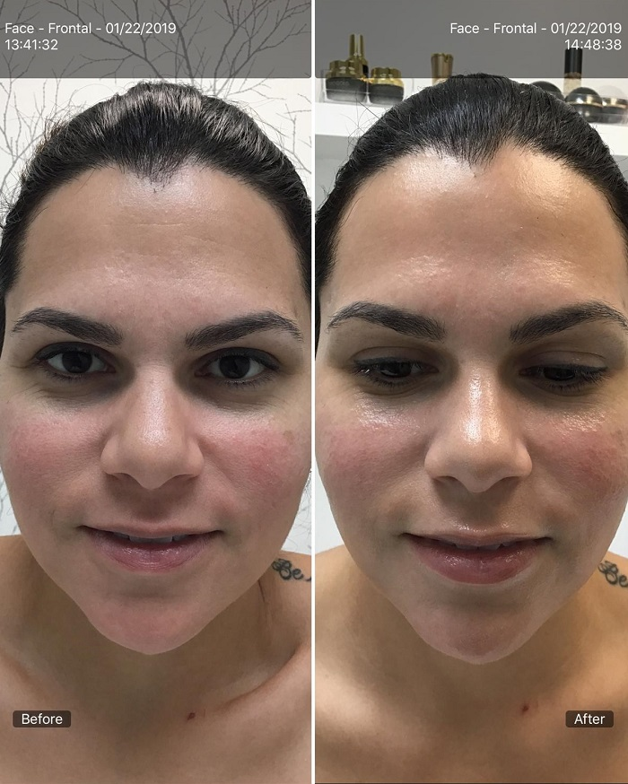 Before and After RF Aqua Facial