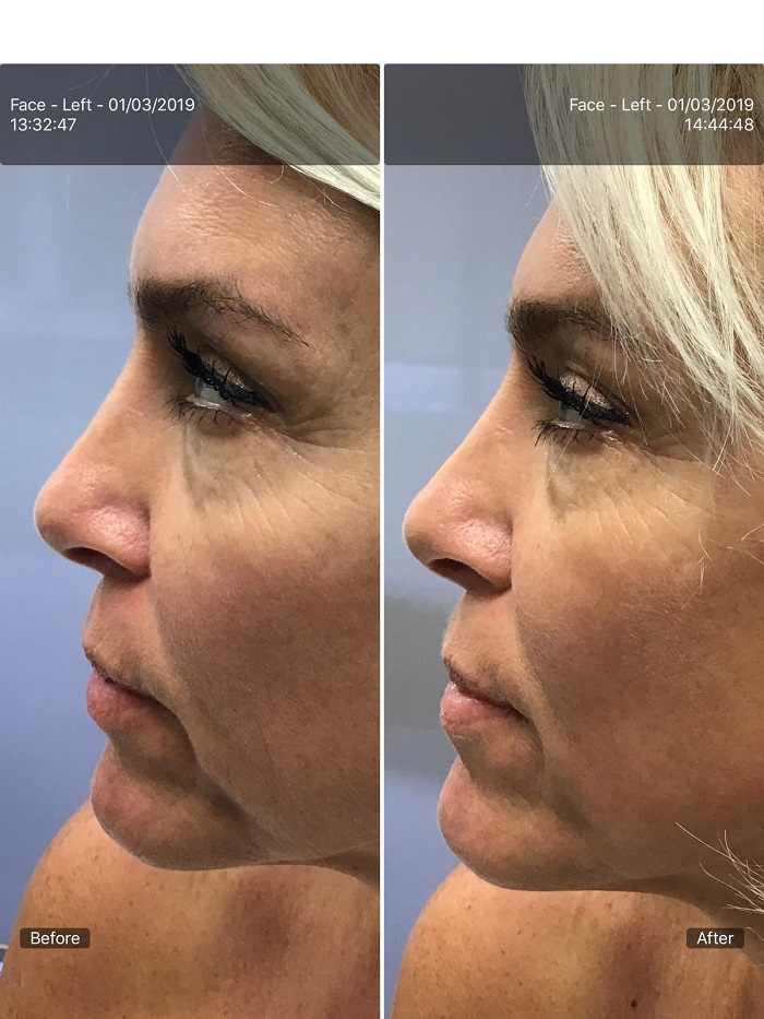 Before and after RF Aqua Lift Facial