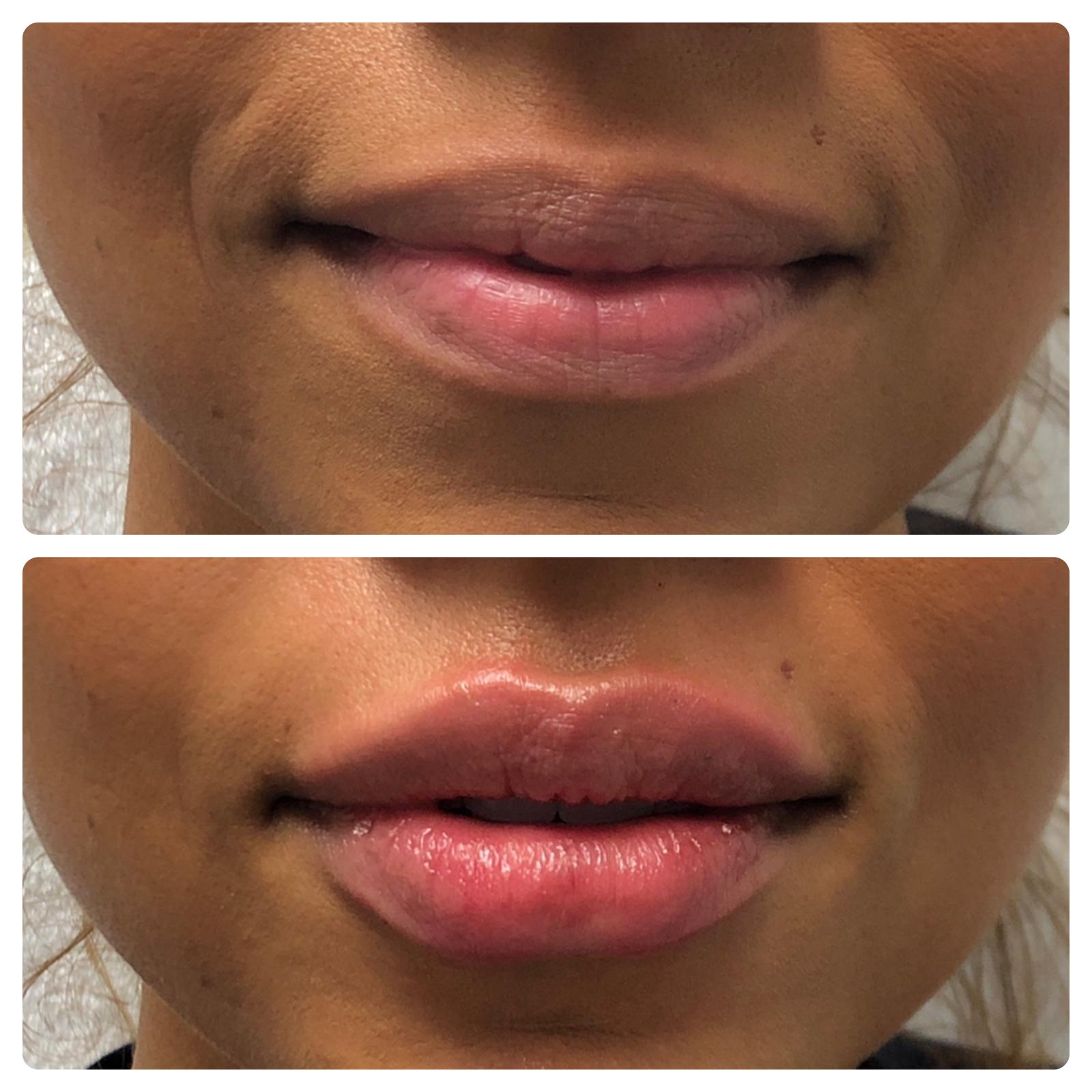 Before and After Lip Filler (lips are fuller and more evenly shaped)