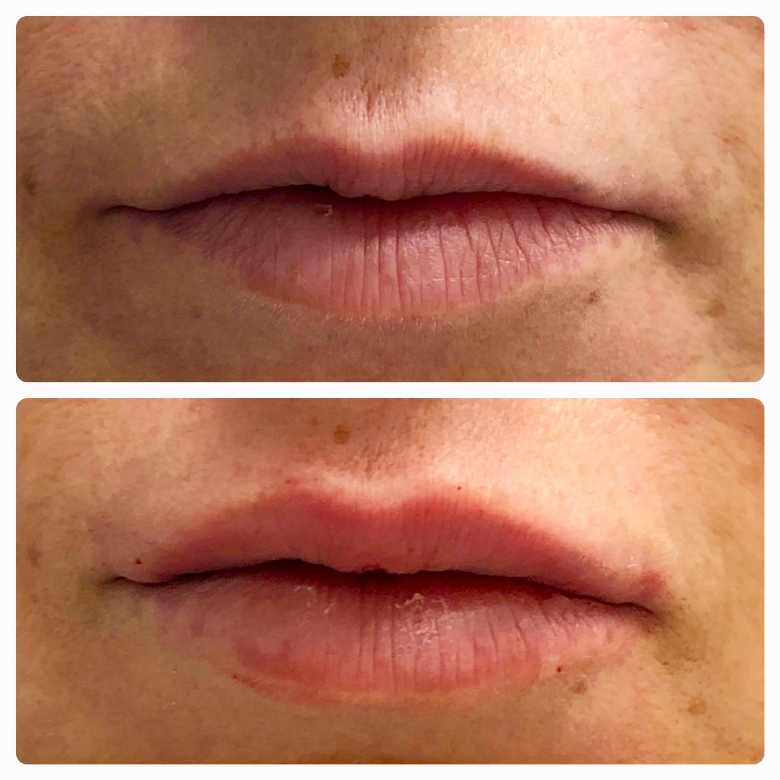 Before and After Lip Filler - bottom lip is more proportional with bottom lip
